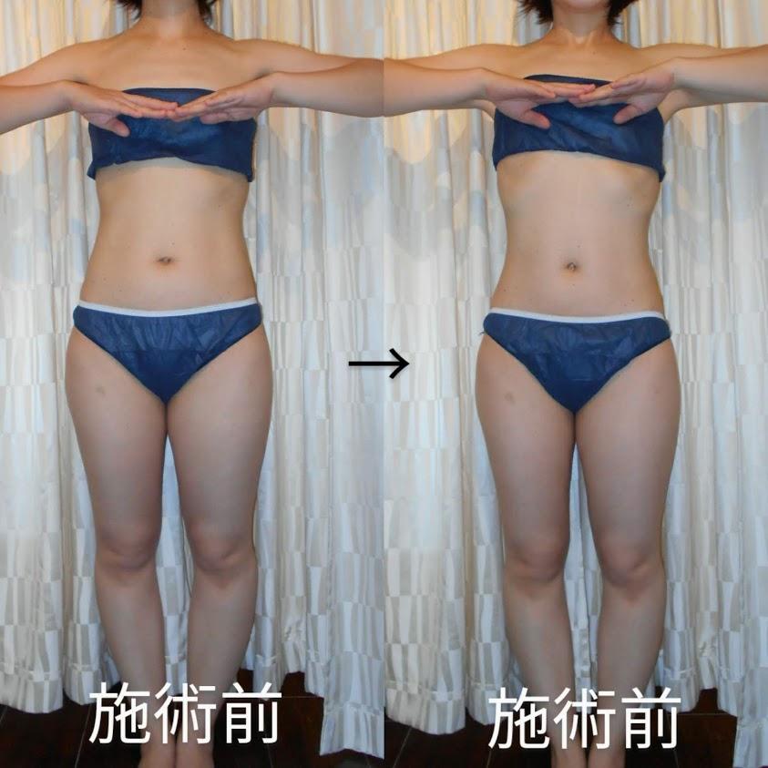 女性専用筋膜リリースサロン麻布十番DAISY